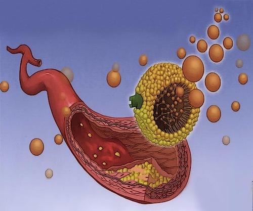 Холестериновая Теория Происхождения Атеросклероза