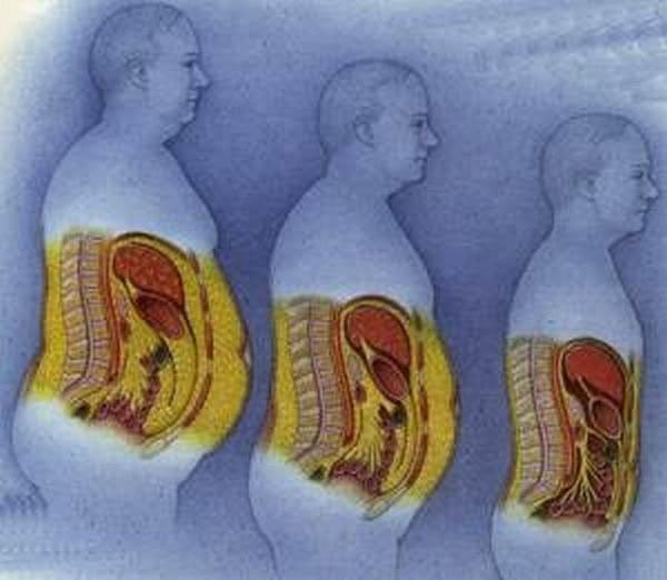 как убрать жир мужчине