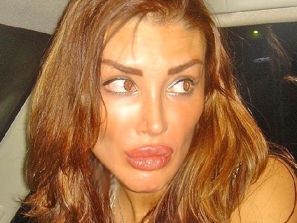 силикон и ботекс в женских губах сейчас почти норма.